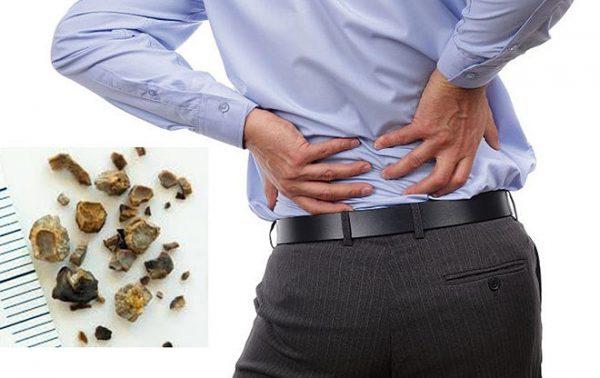 đau nhức xương vì sỏi thận