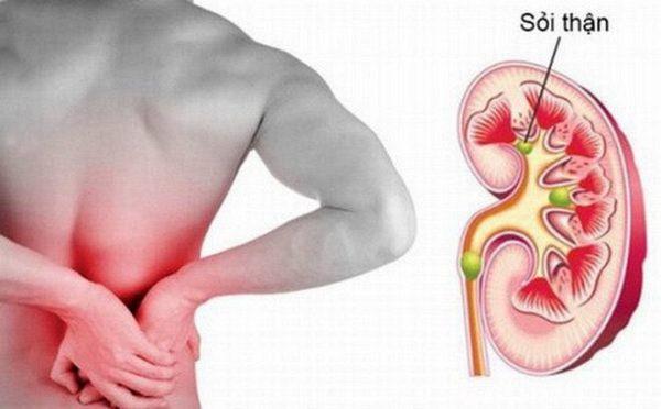 Đau bụng là triệu chứng chính của bệnh sỏi mật, sỏi tiết niệu