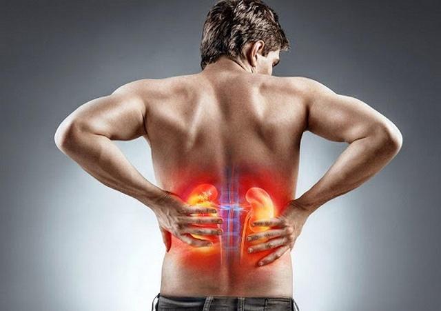 Đau lưng là triệu chứng chính của bệnh sỏi thận